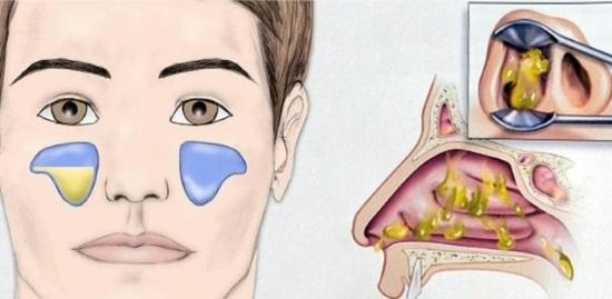 Затемнение гайморовой пазухи на снимке у зуба
