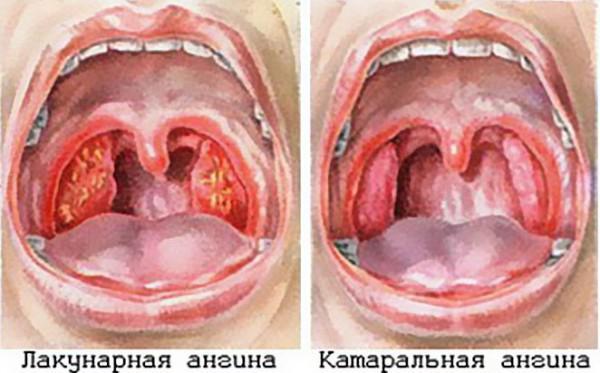Vishnya мастер 9 лет назад если просто насморк и першение в горле, то я бы приложила все усилия, чтобы максимально скрыть эти симптомы обычной простуды.