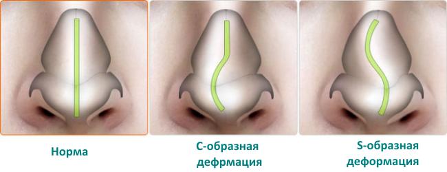 ушиб носа лечение