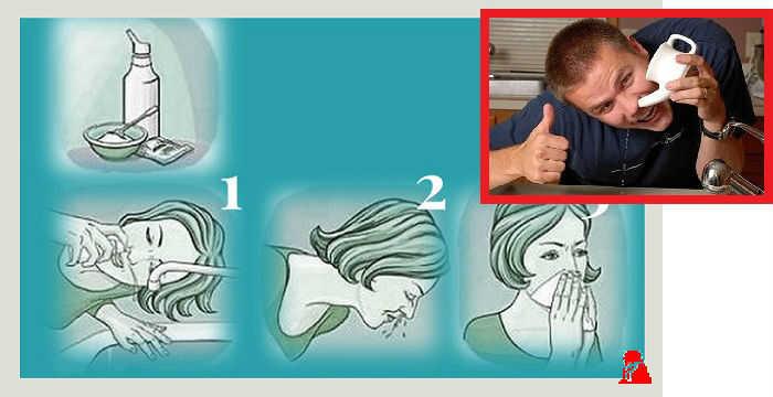 гайморит промывание носа в картинках том