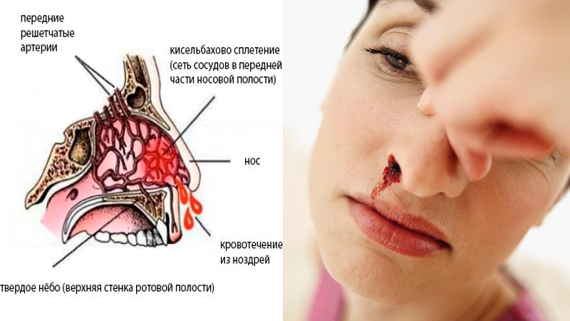 Кровотечение из носа из за внутричерепного давления